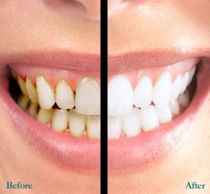 Teeth Whitening 01